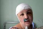 Экспертиза окончательно подтвердила, что Крашкова была изнасилована