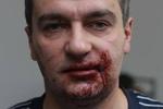 """""""Спортсмены"""" в Мариинском парке избили журналистов и милиционеров"""