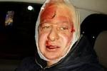 "Фотожурналиста на Банковой жестоко избили 8 бойцов ""Беркута"""