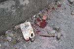 После ночных побоев на улице Грушевского остались только лужи крови