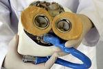 Скончался первый в мире человек с искусственным сердцем