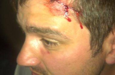 Кандидат в депутаты Киеврады Руслан Андрийко о нападении на себя: Это было как в голливудском боевике