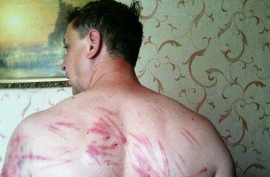 """Пастор, побывавший в плену у боевиков """"ДНР"""", показал, что они с ним сделали"""