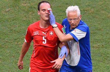 Игрок сборной Швейцарии в матче с Францией получил перелом лицевой кости