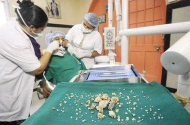 Из челюсти индийского подростка извлекли 232 зуба