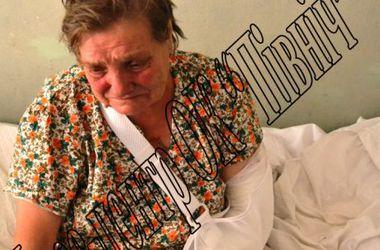 """Террористы обстреливают мирных с """"Града"""": двум женщинам ампутировали стопы"""