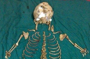 В Индии врачи извлекли из утроба женщины скелет давно умершего ребенка