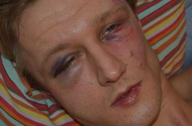 В Киеве на Подоле избили преподавателя Могилянки