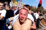 Все подробности избиения Шуфрича в Одессе