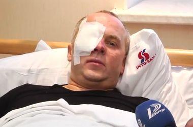 Шурфич рассказал о своем избиении в Одессе