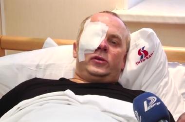 Расследование нападения на Шуфрича в Одессе – на личном контроле Авакова