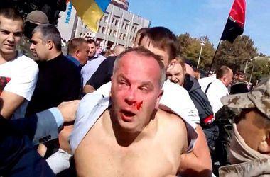 Советник Авакова: По делу об избиении Шуфрича идентифицированы 14 человек, пока никто не задержан