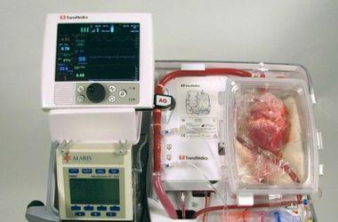 Австралийские хирурги совершили переворот в трансплантологии