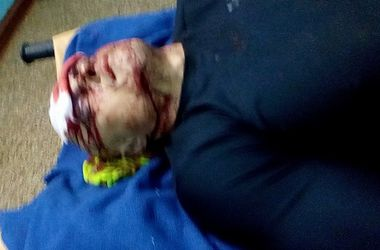 В Одессе жестоко избили евромайдановца