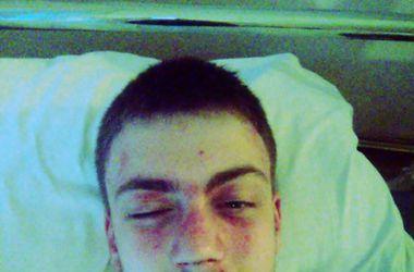 В Киеве избили парня за нетрадиционную ориентацию – источник (обновлено)