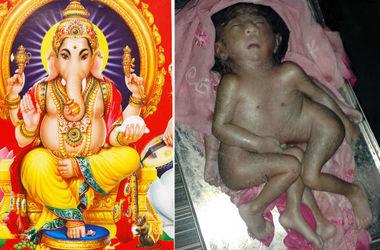 В Индии родился ребенок с четырьмя руками и ногами