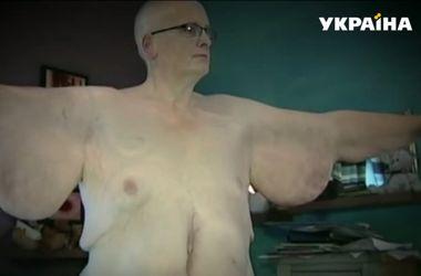 Похудевший на 305 килограммов британец готов идти под венец