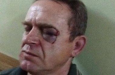 Под Киевом жестоко избивают активистов, открыты уголовные производства