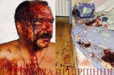 В Буче жестоко избили активиста, который защищал лес