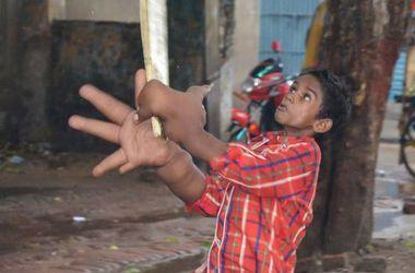 В Индии врачи уменьшили мальчику гигантскую руку