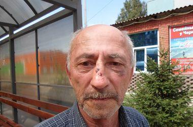 В Кривом Роге льготник пожаловался на жестокое избиение маршрутчиками