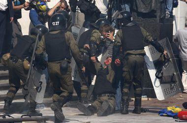21 человек получил огнестрельное ранение возле Рады - Минздрав