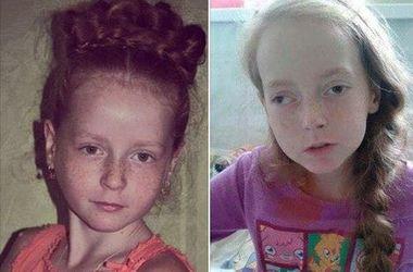 10-летняя Настя перенесла два инсульта и кому: девочке нужна помощь