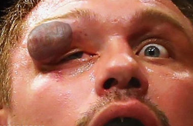 Страшные кадры: боец ММА едва не лишился глаза