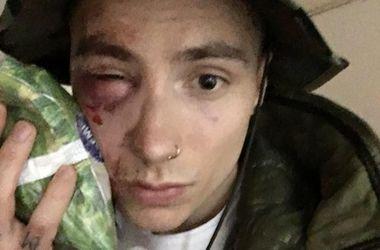 В Киеве жестко избили участника Quest Pistols Show