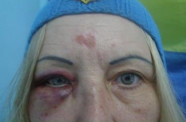 Под Одессой избили волонтера украинской армии