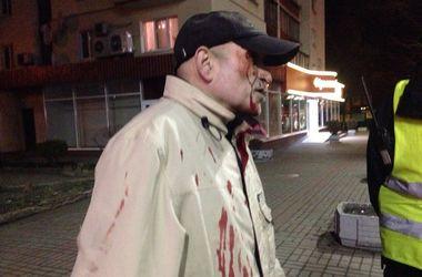 В Киеве пьяный пешеход бросился под колеса машины