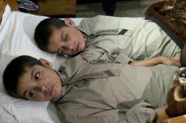 В Пакистане ученые не могут объяснить аномалию двух братьев