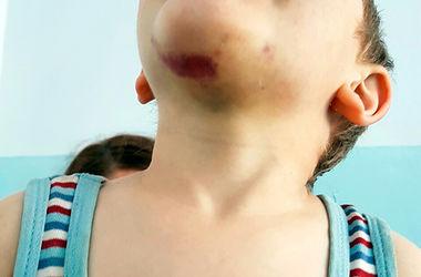В Хмельницкой области мать зверски избила 3-летнего ребенка-эпилептика