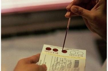 как в анализе крови обозначается холестерин
