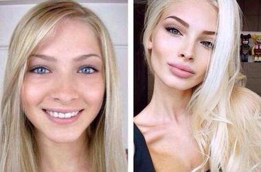 ТОП-10 сексуальных звезд Instagram до и после пластических операций