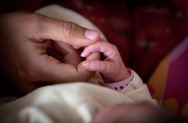 В Казахстане родился ребенок с четырьмя ногами