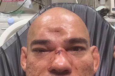 Бразильскому бойцу смешанных единоборств проломили череп во время поединка