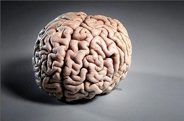 Ученые нашли отличия в мозгах полных и стройных людей