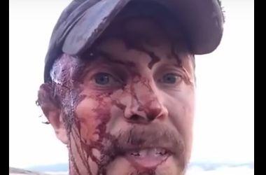 Видеошок: охотник снял себя на видео после нападения гризли