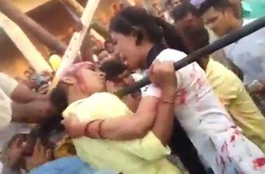 В Индии из-за селфи девушка лишилась скальпа
