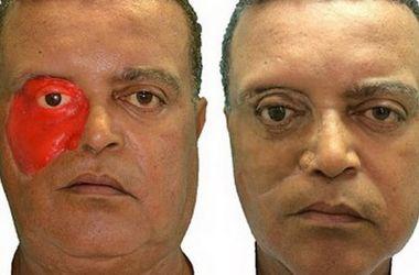 Первому человеку в мире сделали лицо с помощью 3D-печати
