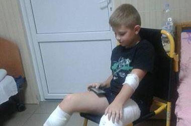 Под Киевом собаки искусали школьника, а взрослый мужчина едва выжил и поседел после встречи с ними
