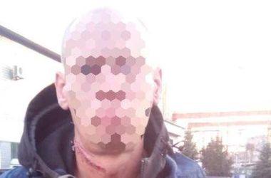 В Днепре девушку похитил и жестоко избил бывший бойфренд