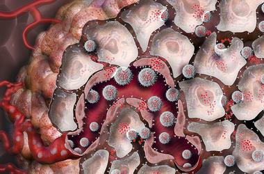 Прорыв в онкологии: наночастицы побеждают рак