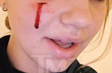 Собака Обамы укусила за лицо пришедшую в Белый дом 18-летнюю девушку - СМИ