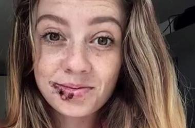 Британская модель продолжит карьеру манекенщицы после жесткого нападения собаки