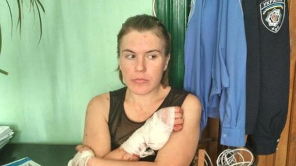 Милиция задержала вКиеве россиянку, которая убежала изпсихушки Львова