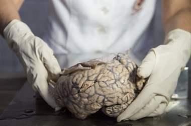 Ученые вырастили сложный искусственный мозг