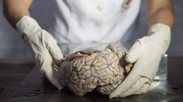 Ученые изЯпонии отыскали способ стирать плохие воспоминания