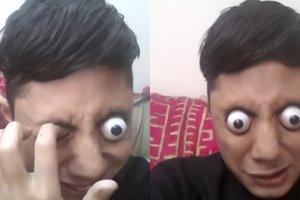 Видеошок: пакистанский подросток, у которого буквально глаза вылезают из глазниц